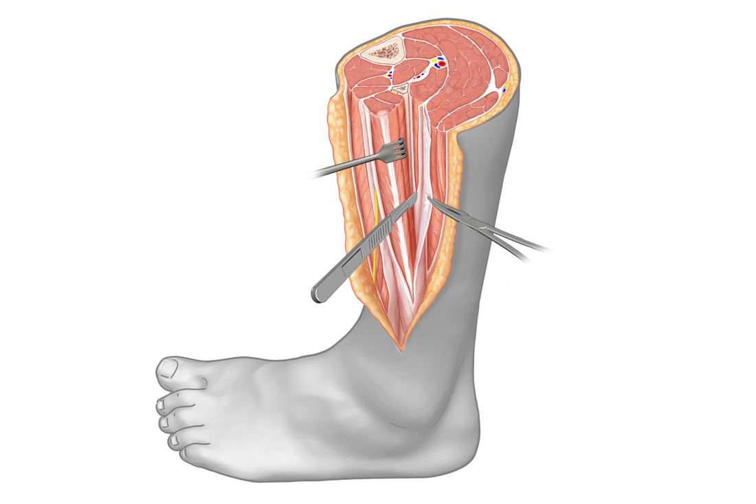 Fasciotomy of the lower leg