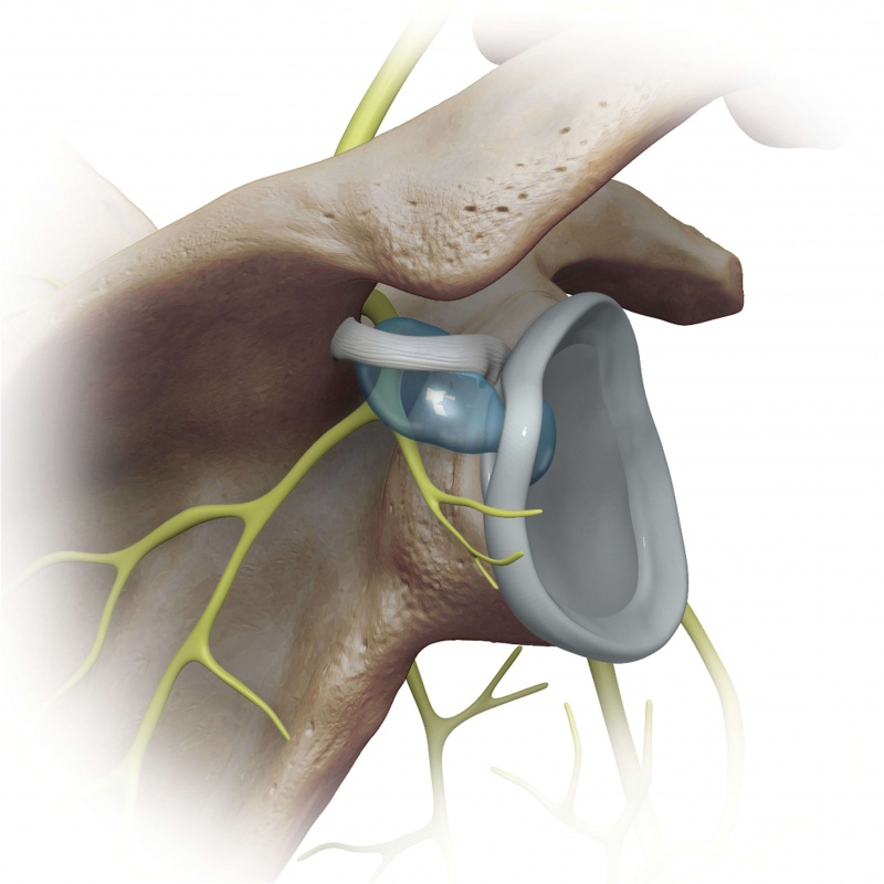 cyst communication with labral tear 2