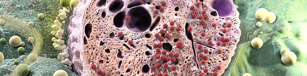 pancreatic cells