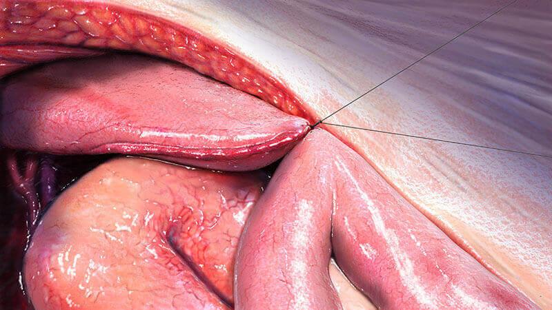 Medical illustration of open surgery, medical art, medical illustration, Catherine Sulzmann, medical artist