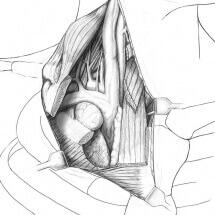 medical art, medical illustration, Catherine Sulzmann, medical artist