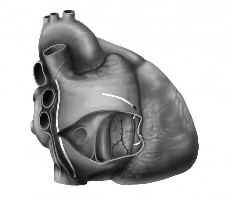 Cox Maze surgery heart right atrium medical illustration grayscale
