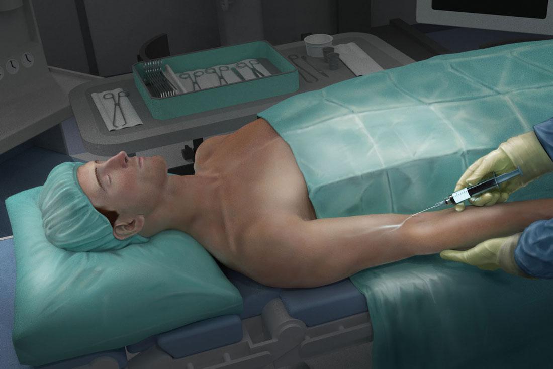 Detecting tumors