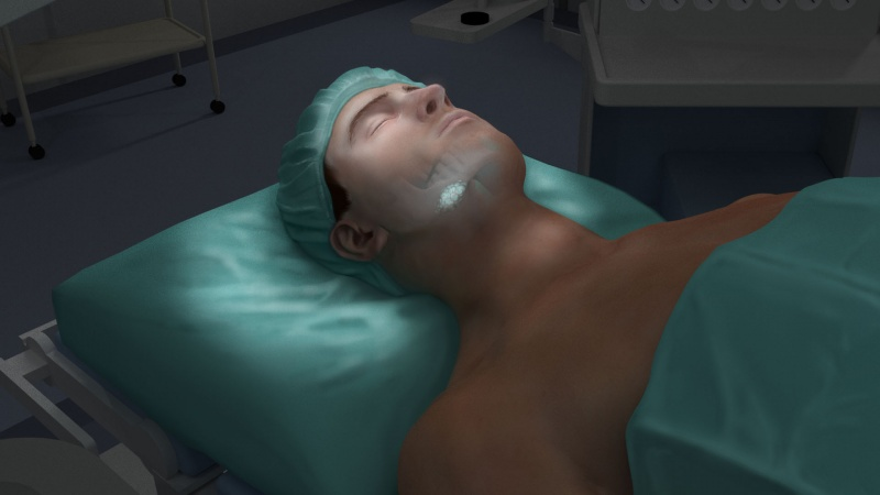 Surgical sequence Lightpoint medical