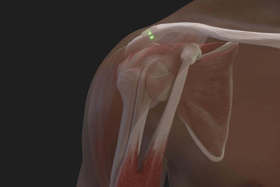 Shoulder injection ACJ