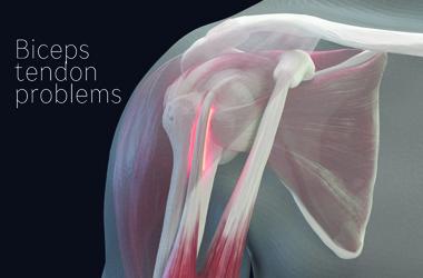 biceps tendon tendinosis Shoulder anatomy