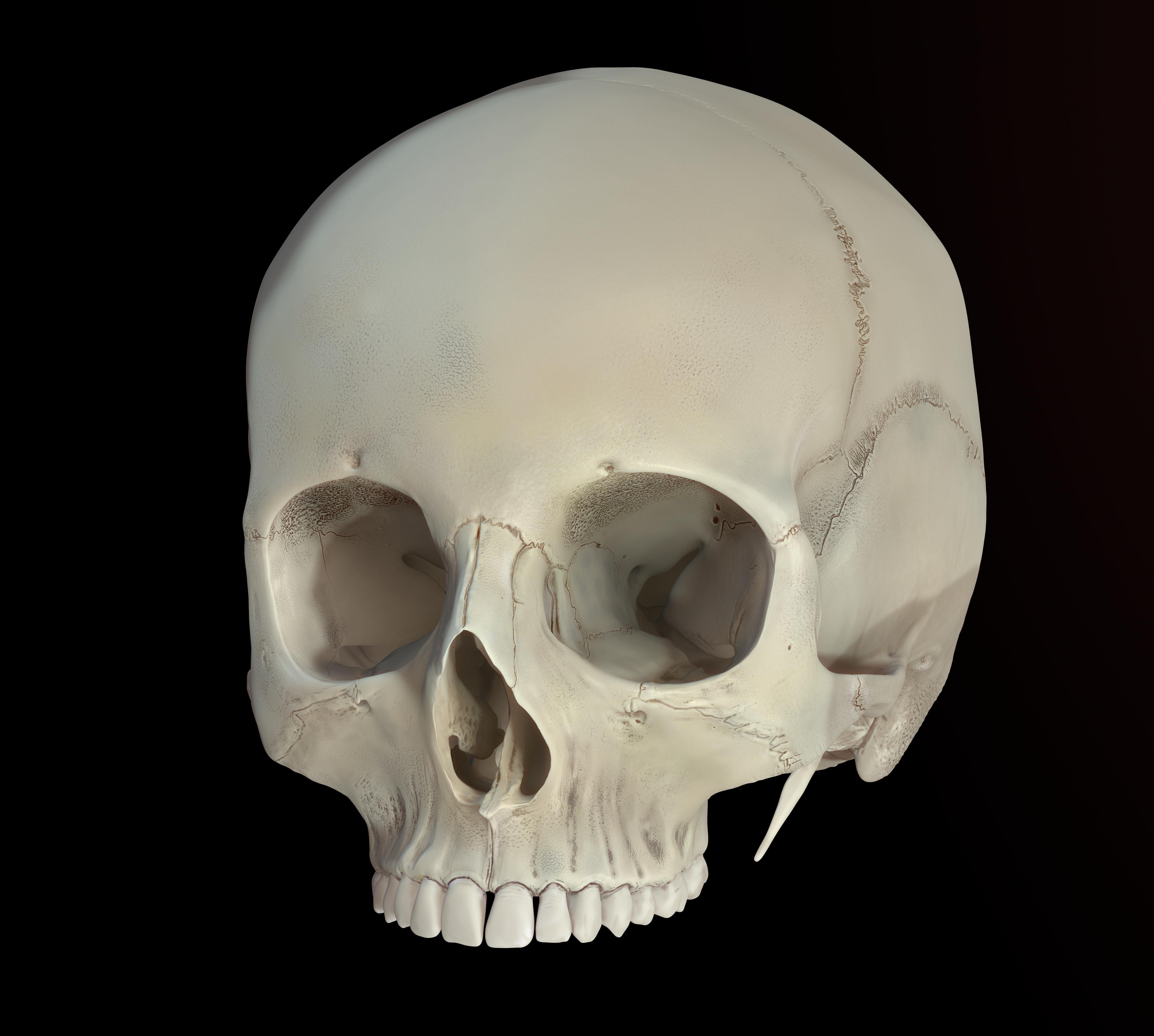 Cribra orbitalis Skull Medical art