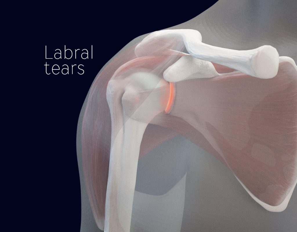 labral tear image medical illustration