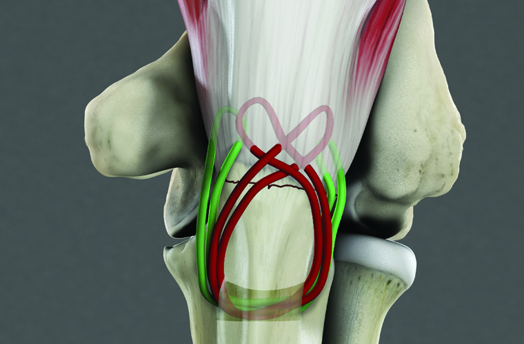 Proximal ulna fracture surgery elbow Medical illustration