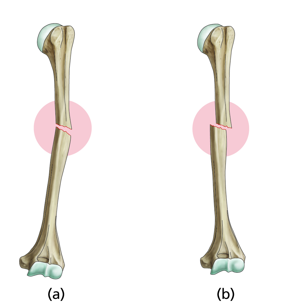 Illustration humeral fractures for the book Surgical Talk