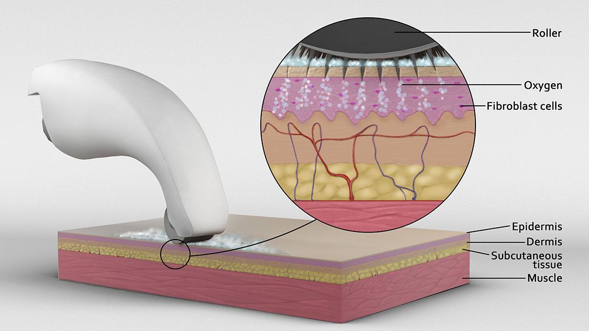 microdermabrasion medical illustration