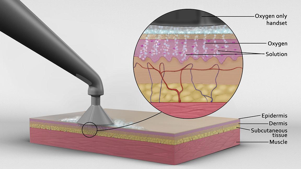 Skin care Medical illustration