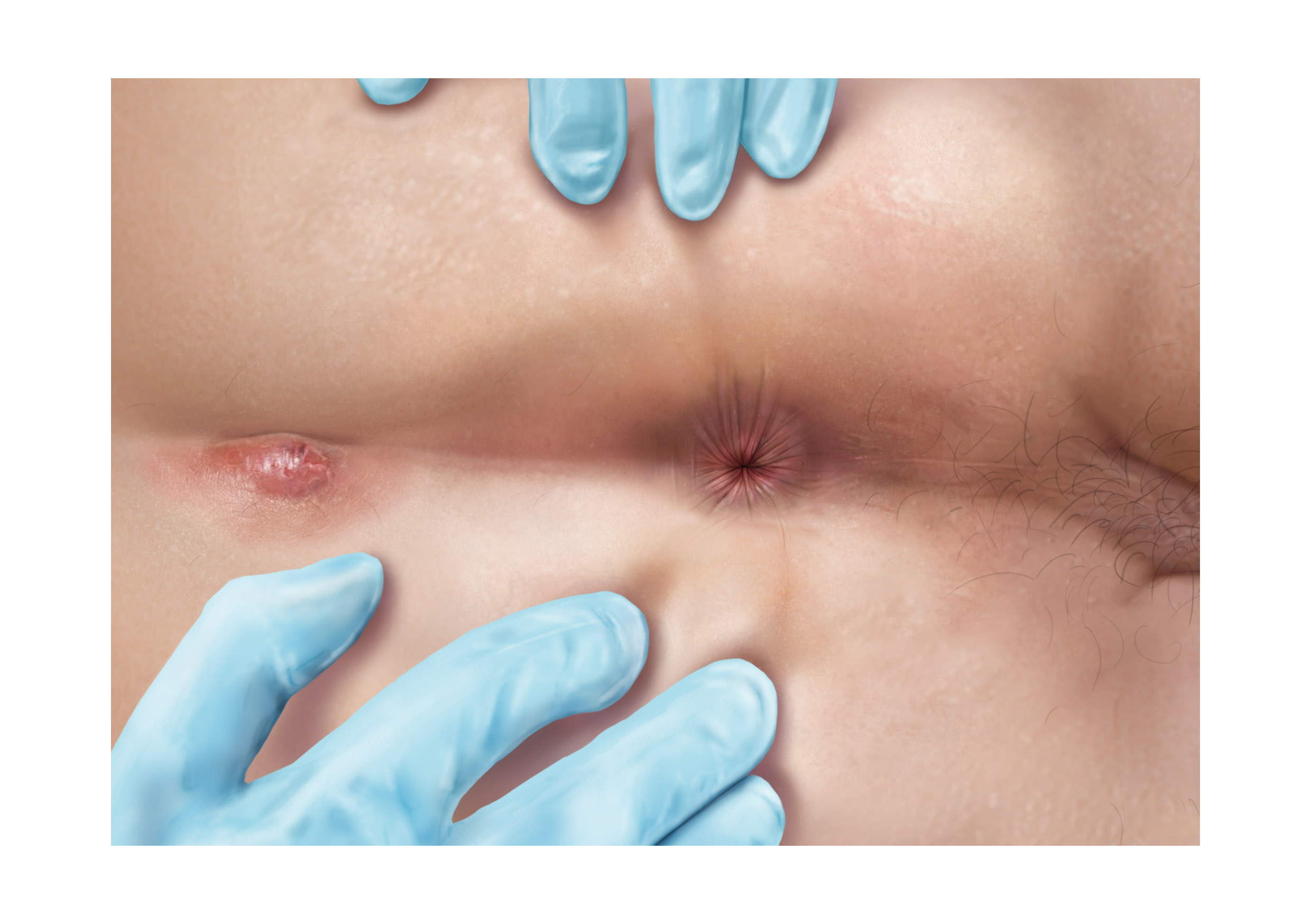 Illustrations of various diseases which can be found in rectal examinations - abscess