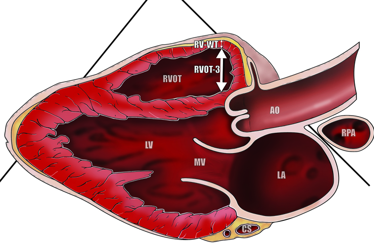 Echocardiology cross section of heart medical illustration