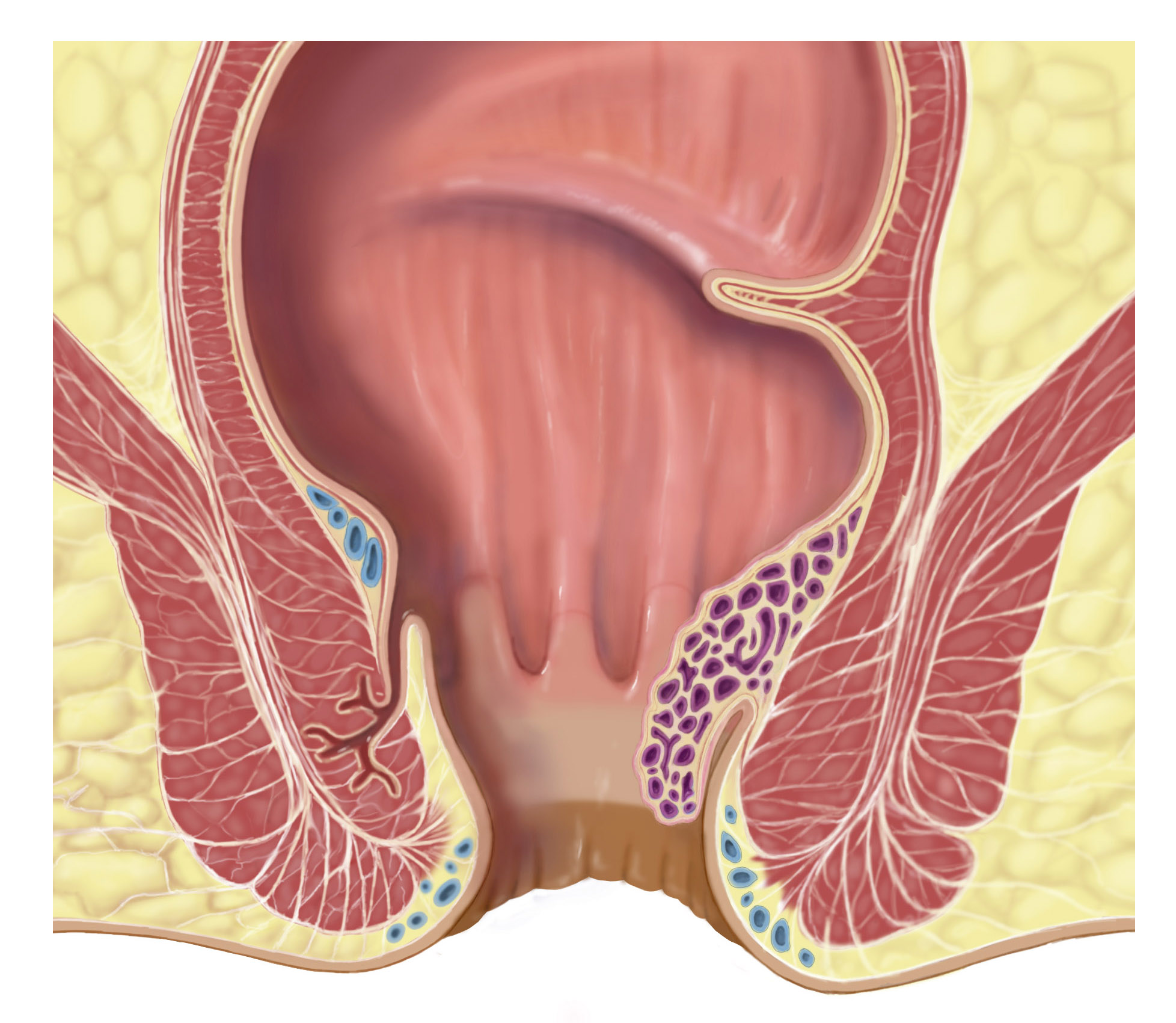 Illustrations of various diseases which can be found in rectal examinations - internal hemorrhoids