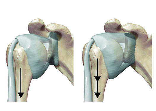 Medical illustration, inferior movement of the humerus in glenohumeral joint