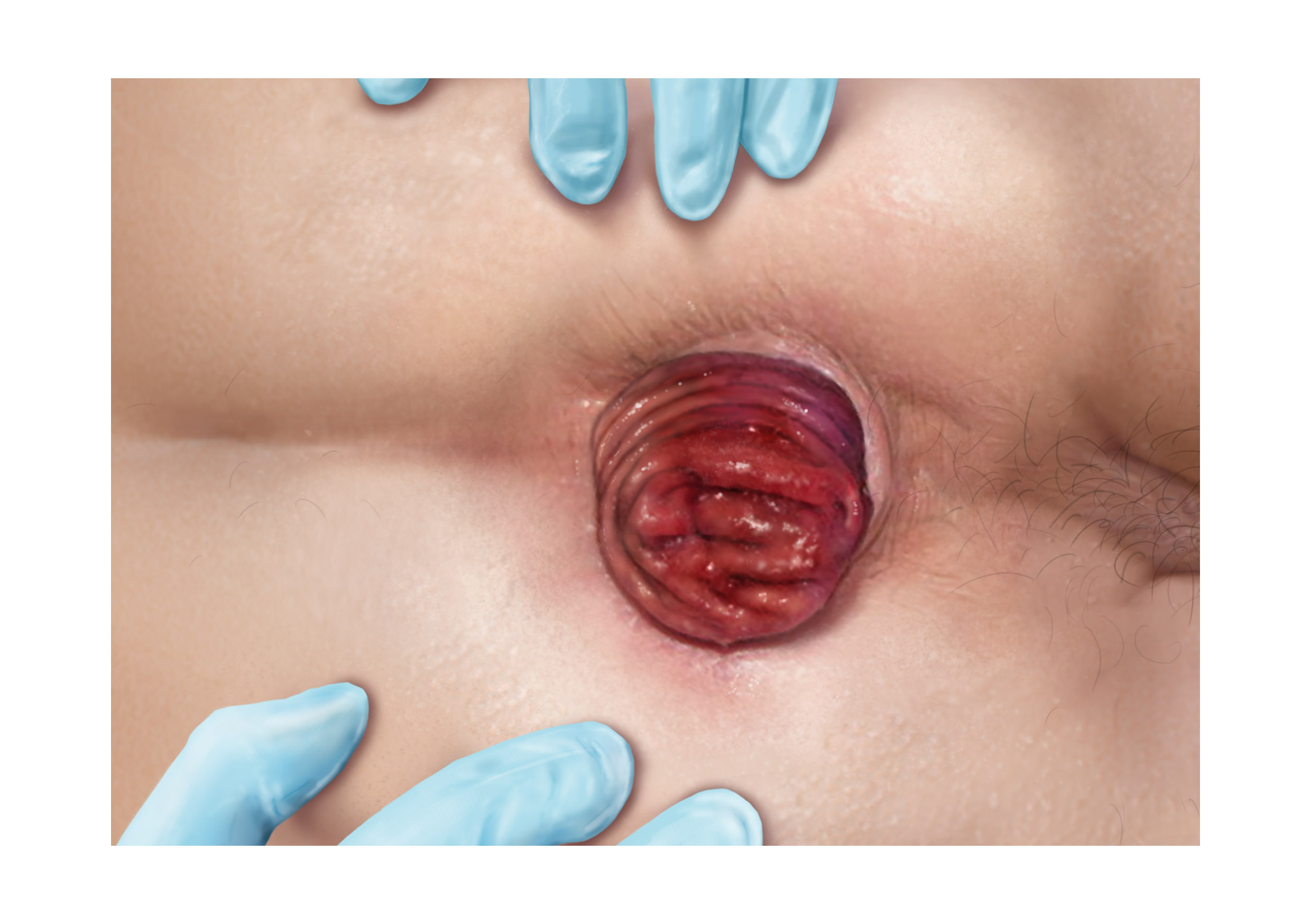 Illustrations of various diseases which can be found in rectal examinations - prolapse
