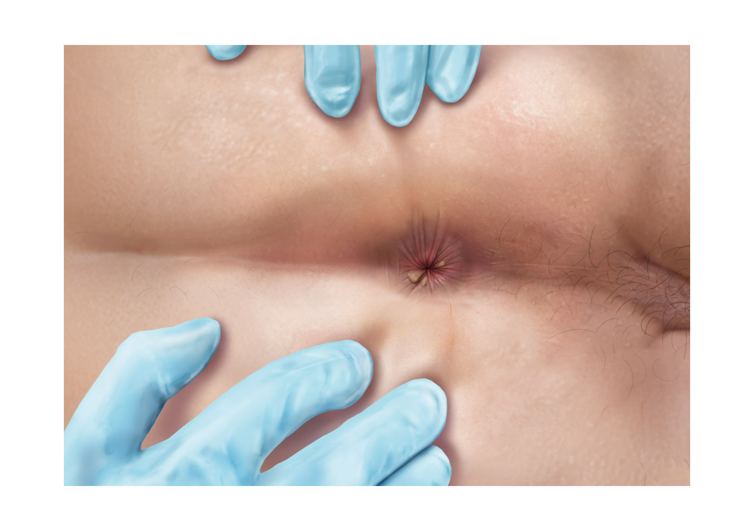 Illustrations of various diseases which can be found in rectal examinations - skin tags