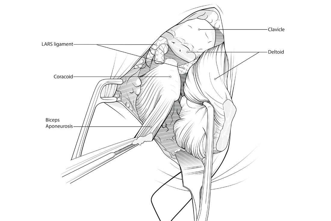 Shoulder ACJ surgery